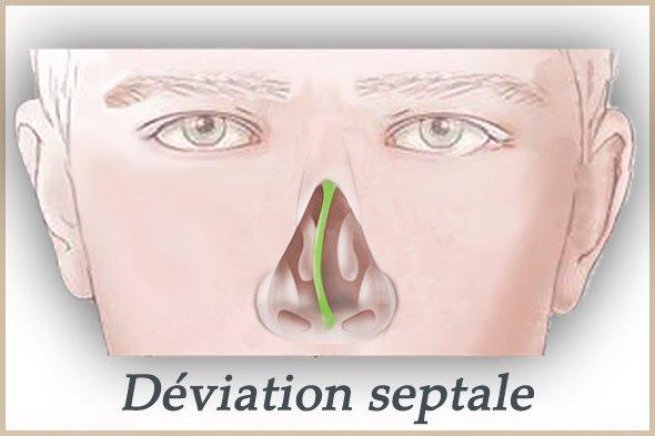 deviation septale